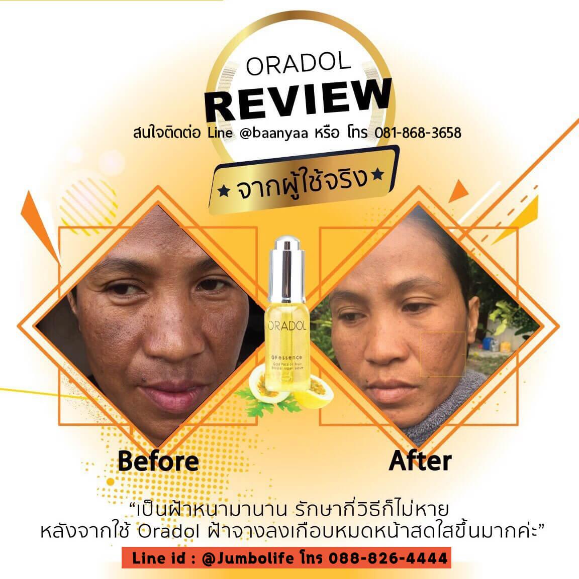Oradol ดีไหม, Oradol เซรั่ม, ขาย Oradol, Oradol แตงโม, Oradol ราคาถูก ,ออราดอล , ออราด้อล