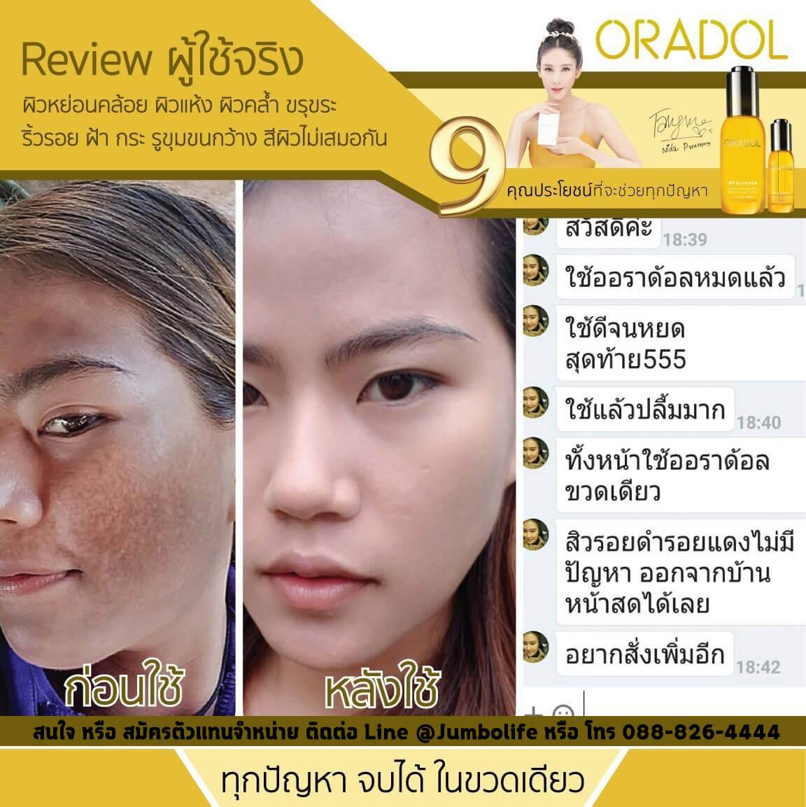 Oradol ดีไหม, Oradol เซรั่ม, ขาย Oradol 1